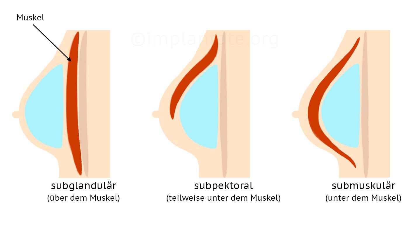 Machen silikon brust selber Falsche Brüste