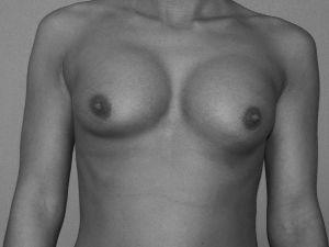 thumb Brustimplantat Dislokation Hochstand