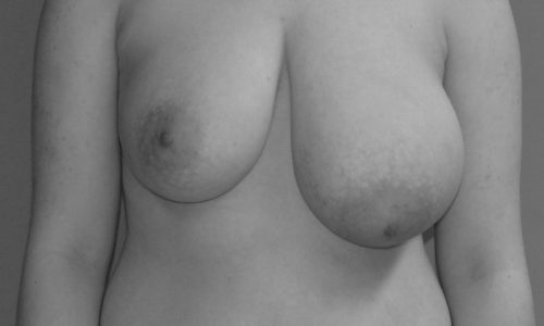 Brust-Asymmetrie