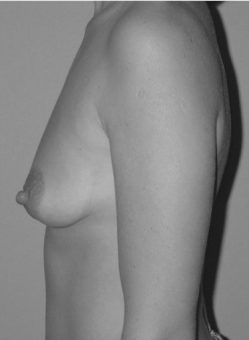 Brust-Straffung_vorher