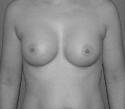 Brust_OP_vorher_nachher_nach_OP