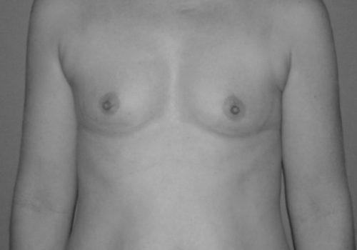 Brust_OP_vorher_nachher_vor_OP