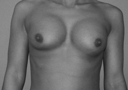Brustimplantat_Dislokation_Hochstand