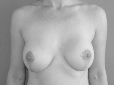 Bruststraffung_nachher