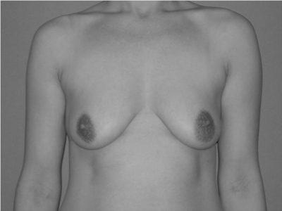Bruststraffung_vorher