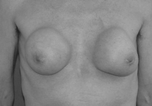 Kapselfibrose
