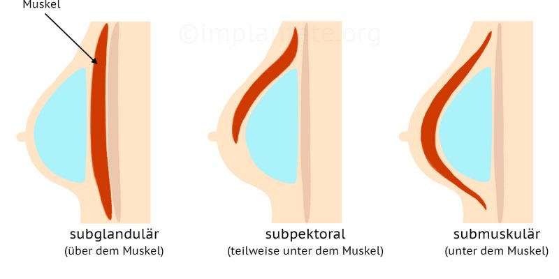 implantatplatzierung_brustmuskel