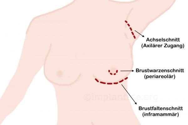 Verschiedene Methoden für Implantateinbringung